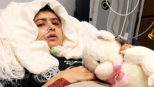 Pakistani girl shot by Taliban recovers
