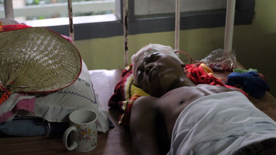 A Rakhine refugee lies on a bed under medical treatment at Sittwe hospital in Sittwe, Myanmar, Friday, Oct. 26, 2012.  (AP / Khin Maung Win)