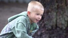 Jakob Temple is set to undergo a very rare operation in the U.S. in January. Oct. 24, 2010. (CTV)