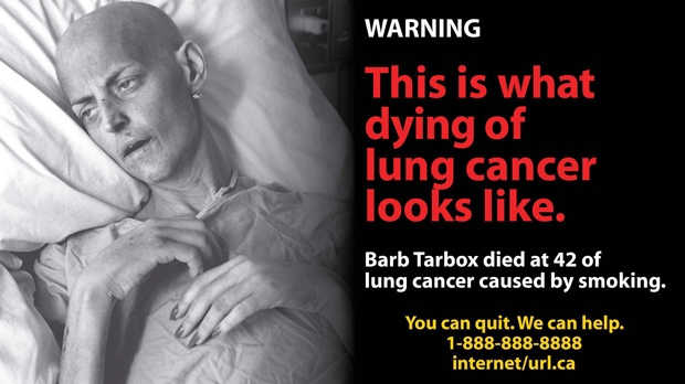 Health Canada released this explicit warning for cigarette package labels Thursday, Dec. 30, 2010. (THE CANADIAN PRESS)