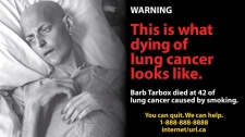 Health Canada cigarette package health warning