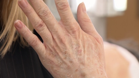 CTV's Norma Reid shows off her artificially aged hand. Nov. 6, 2010. (CTV)