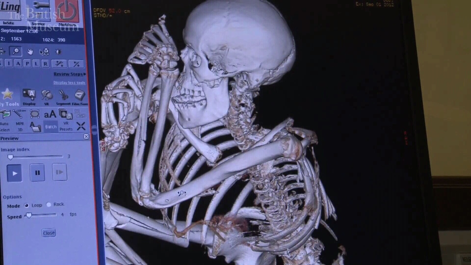 A CAT scan at the British Museum found the cause of death for a 5,500-year-old mummy.