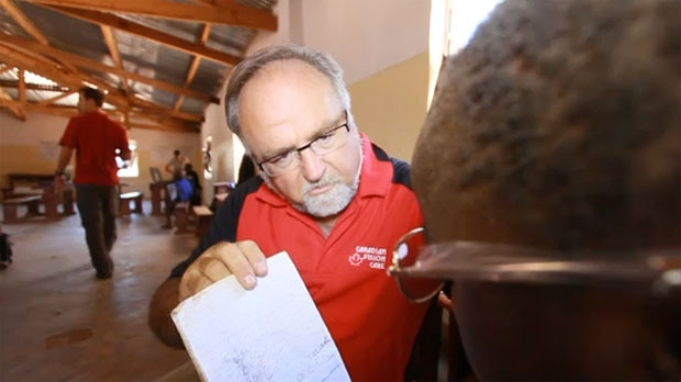 Dr. Allan W. Jones tests the vision of a Malawain child