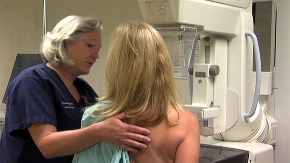Mammograms have to led to more than one million woman being 'overdiagnosed' with breast cancer.