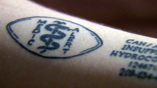 some choose medical tattoos over bracelets ctv news. Black Bedroom Furniture Sets. Home Design Ideas