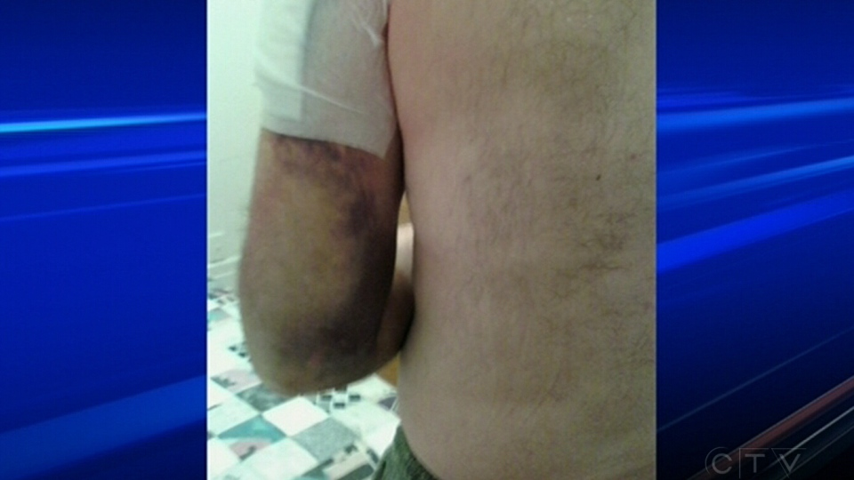 61-year-old suing Quebec officer over claims he was brutally beaten