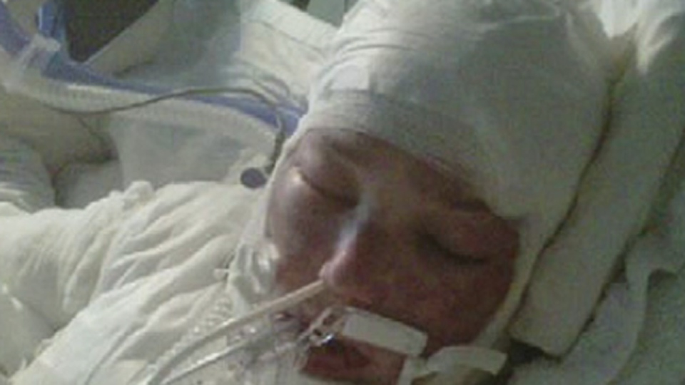 Tanya St-Arnauld as seen in her hospital bed after suffering third-degree burns to her head and chest, and lesser burns to 70 percent of her body. (August, 2012)