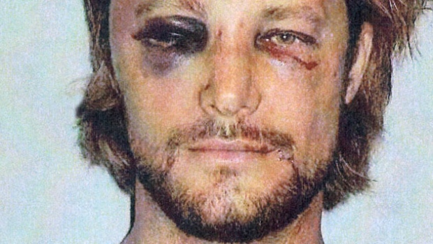 Gabriel Aubry's bruised and beaten face following the altervation.