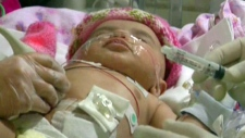 Winnipeg infant undergoes experimental procedure t