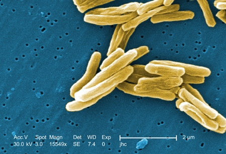This colorized scanning electron micrograph image shows the Mycobacterium tuberculosis bacteria, the cause of tuberculosis, at a magnification of 15549x. (CDC / Dr. Ray Butler, Janice Carr)