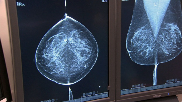 Taking breast cancer drug longer may save more