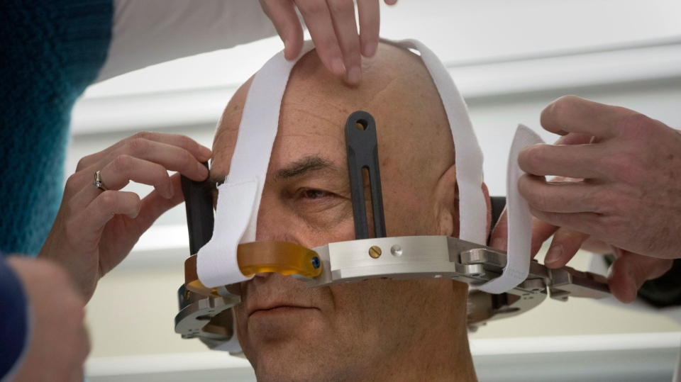 Patient Tony Lightfoot has his headgear attached before his focused high energy ultrasound treatment at Sunnybrook Hospital in Toronto on Tuesday December 18, 2012. (THE CANADIAN PRESS / Frank Gunn)