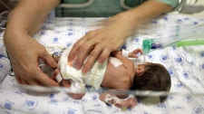A premature baby is touched through an incubator at the Sourasky Medical Center in Tel Aviv, Israel, Thursday, Dec. 10, 2009. (AP Photo/Ariel Schalit)