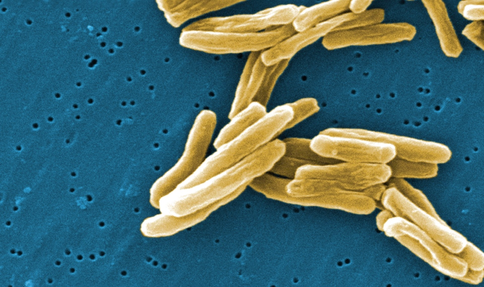 The Mycobacterium tuberculosis (TB) bacteria is shown in a 2006 high magnification scanning electron micrograph (SEM) image.  (THE CANADIAN PRESS/HO, CDC - Janice Carr)