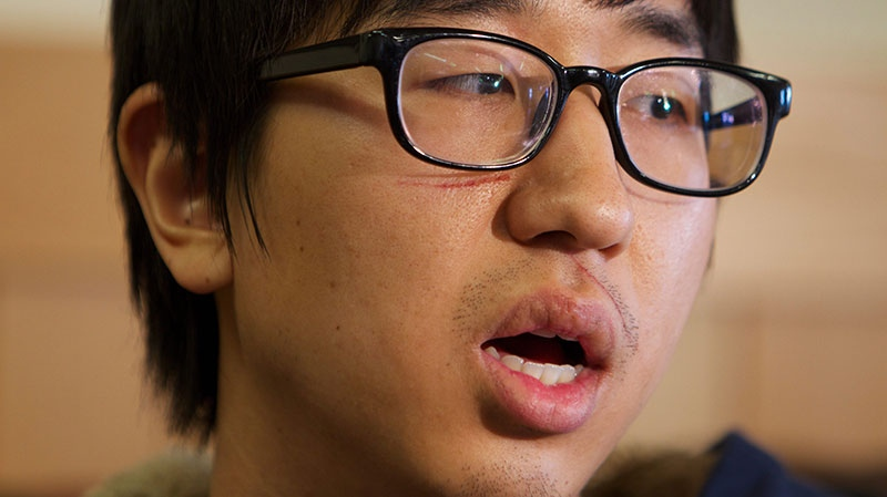 Jaemin Seo, 23, a Korean student from Vancouver, B.C., speaks about waking up to people screaming and then being thrown from a bus that crashed in Pendleton, Ore., Monday Dec. 31, 2012 (The Oregonian, Randy L. Rasmussen)
