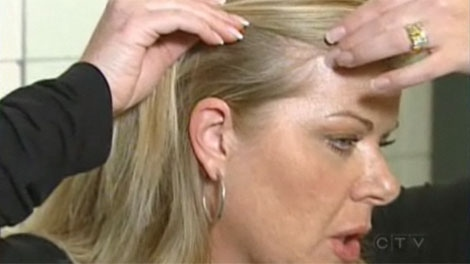Calgarian Suzanne Harvey shows where she lost hair after using a hair smoothing product that contained formaldehyde.