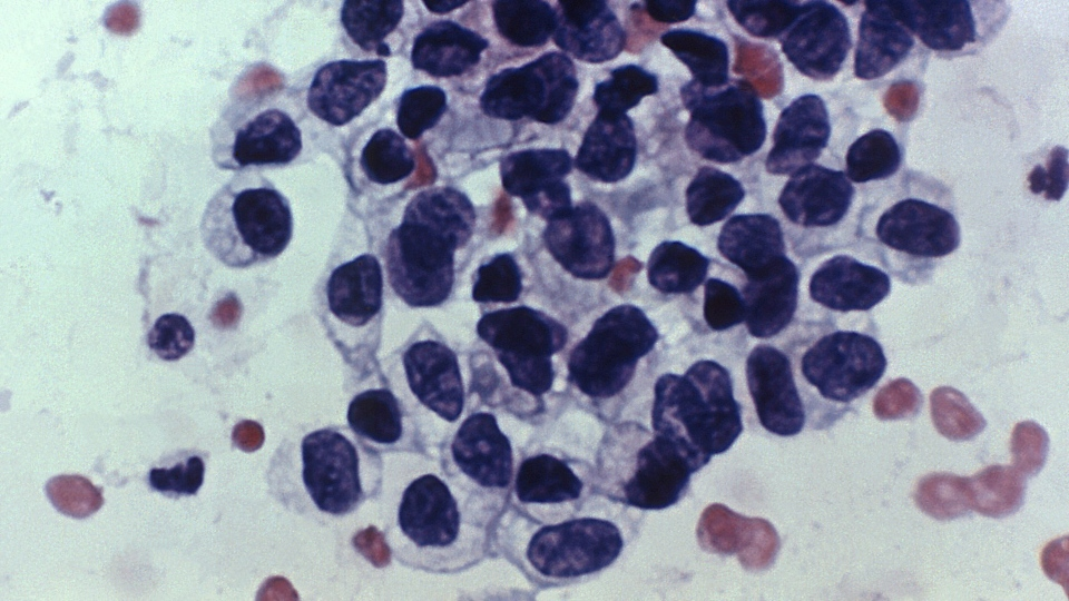 This photomicrograph shows cancerous cells detected by a Pap test, named after Georgios Papanicolaou, the Greek doctor who invented the test.