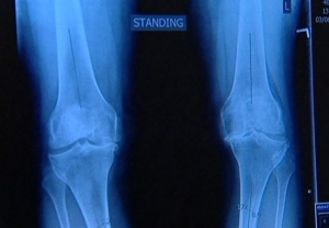 A new study suggests those who hear grating, cracking or popping sounds in and around the knee joints may be more likely to suffer from knee osteoarthritis.