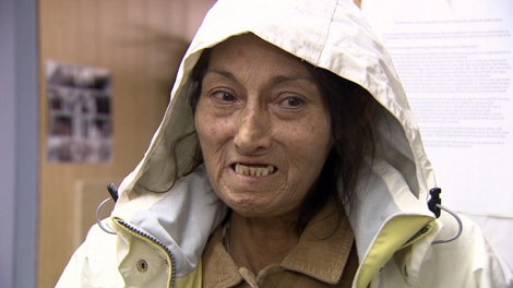 Delanie, who has lived in the First United Church for almost three years, said it�s unlikely she�d ever have dentistry work done without the facility. Dec. 16, 2010. (CTV)