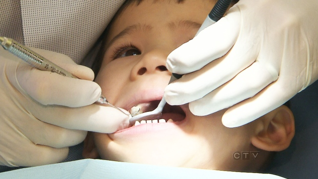 Nova Scotia to expand children's dental coverage to 17 and younger