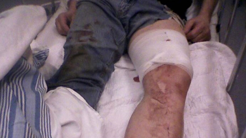 Bill Evanow was mauled by a police dog while trying to help stop a thief in March 2011. (CTV)
