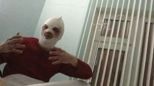 In this video grab provided by RenTV via APTN, Sergei Filin, artistic director of the Bolshoi ballet, gestures in a hospital in Moscow on Friday, Jan. 18, 2013. (AP Photo/RenTV)