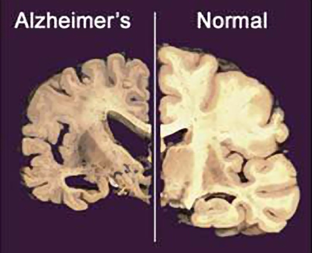 Normal brain, right, and one damaged by Alzheimers