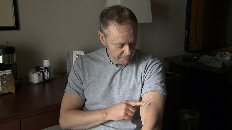 Howard Carley points to an injury he says he received from an attacker's hammer in Vancouver the night before, on Friday, Feb. 1, 2013.