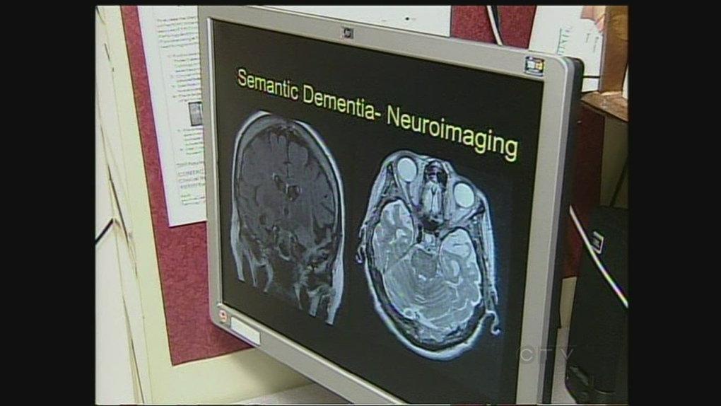 Dementia brain scan