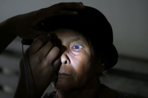 A volunteer examines the eye of a patient prior to her cataract surgery in this November 2012 file photo. (AP Photo/Binsar Bakkara)