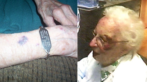 Bruises are seen on two senior citizens who were residents in long-term care homes, in these family handout photos.