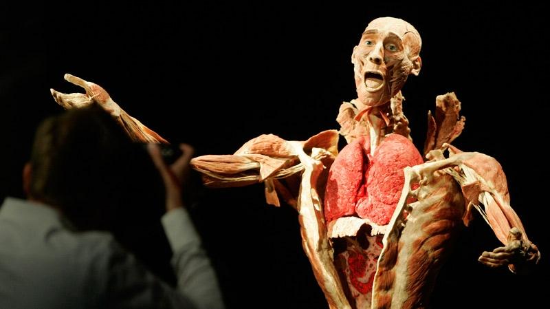 Group Drops Bid To Bury Touring Cadavers Ctv News