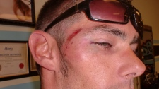 Kelowna, B.C. repo man Jeremy Packer says RCMP Const. Geoff Mantler broke his tooth and left him with a black eye and multiple cuts during a mistaken arrest in August 2010.