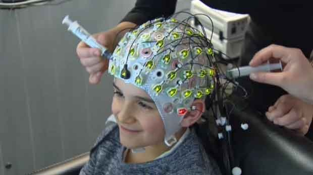 The brain has 100 billion nerve cells.