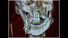 Cassie Walde X-ray