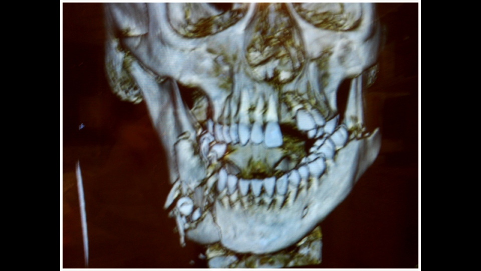 An X-ray of Cassie Walde's face after she fell from a third-floor window of her apartment building.