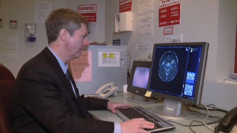 Dr. Derek Emery with the University of Alberta says MRI wait times are long and patient access is limited. By using new data suggesting many lower-back MRIs aren't unnecessary, tools may be developed to help rein in unnecessary ordering of tests.