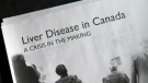 Health experts are raising the alarm over the rising number of deaths from liver disease in Canada. A landmark study found a 30 per cent increase in deaths from liver disease over eight years – with cases most prevalent in Alberta, B.C., Ontario and Quebec.
