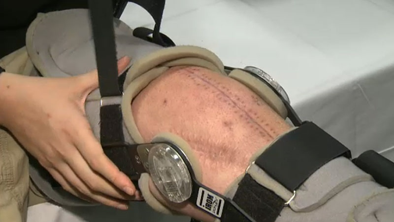 Matt Smith, 22, was the first person in Edmonton to undergo a shin bone, live cartilage and meniscus transplant to help his severely injured knee after a workplace accident.
