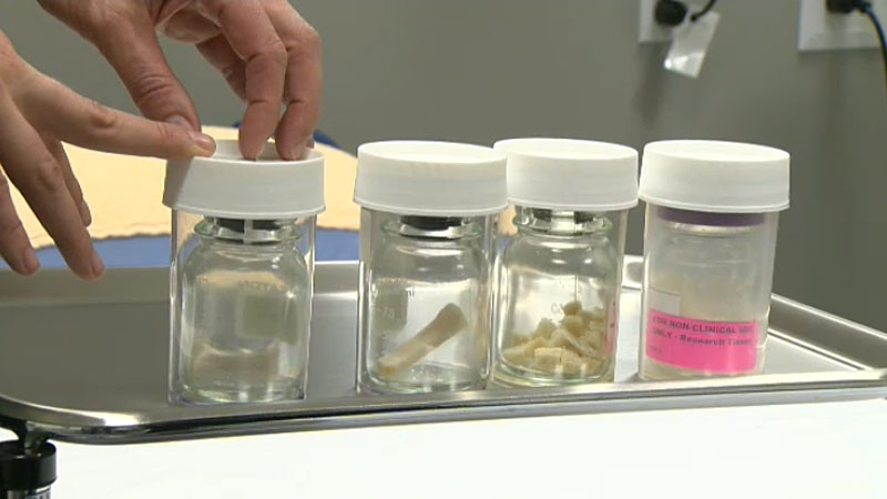 Edmonton receives about 30-40 bone and tendon donors each year - which a tissue specialist says is not nearly enough.