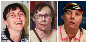 This photo combination shows Carmen Blandin Tarleton, who suffered chemical burns over 80 per cent of her body when her estranged husband doused her with lye in June 2007. The undated photo at left, provided by the Blandin family, shows Tarleton before the attack. The center photo, provided by Brigham and Women's Hospital in Boston, shows Tarleton in July 2011. The photo at right shows Tarleton on Wednesday, May 1, 2013, after her successful face transplant in February. (AP Photo)