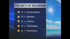 ABC's of melanoma