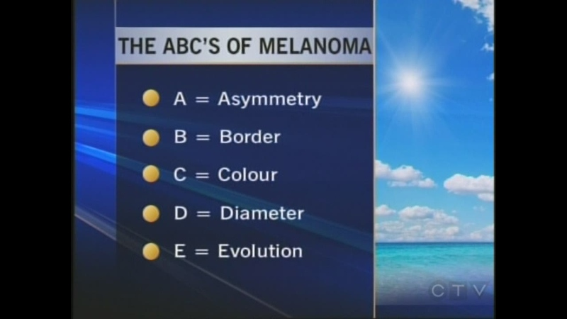 What you should be looking for if you suspect melanoma.