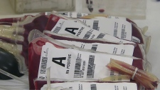 Canadian Blood Services considering halting blood donations from travellers to Zika areas