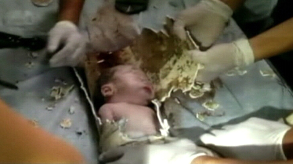 Rescuers Pull Newborn Boy Alive From Sewer In China Ctv News