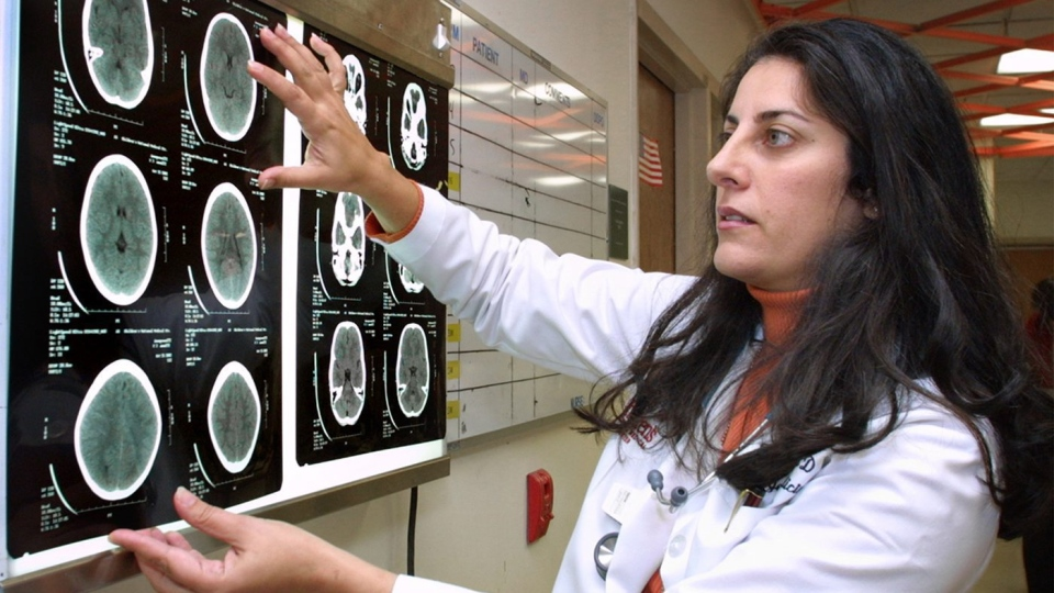 A doctor looks over a CT scan of a brain in this file photo. (AP Photo/Adele Starr)