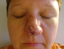 Anne Riel had the tip of her nose bit off when she greeted a customer and her dog at a Home Depot store on Cyrville Road in Ottawa, Friday, April 15, 2011.