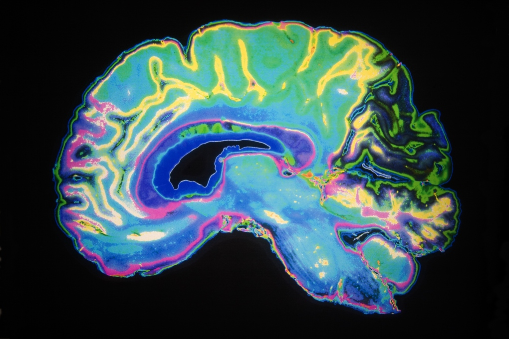 Genetics and brain imaging being combined to better understand ADHD