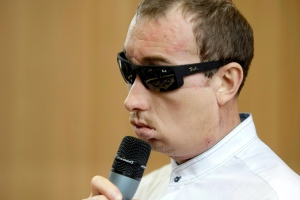 Poland's first face transplant patient, identified only by his first name Grzegorz, speaks at a press conference after he was discharged from the hospital, in Gliwice, Poland, Tuesday, July 30, 2013. (AP / Tomasz Griessgraber)